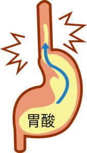 逆流性食道炎(GERD)について
