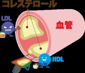 高コレステロール血症・高脂血症について
